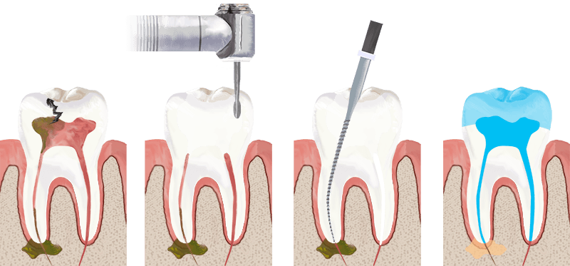 Root Canal in Henderson