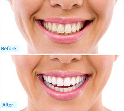 Teeth Whitening in Henderson